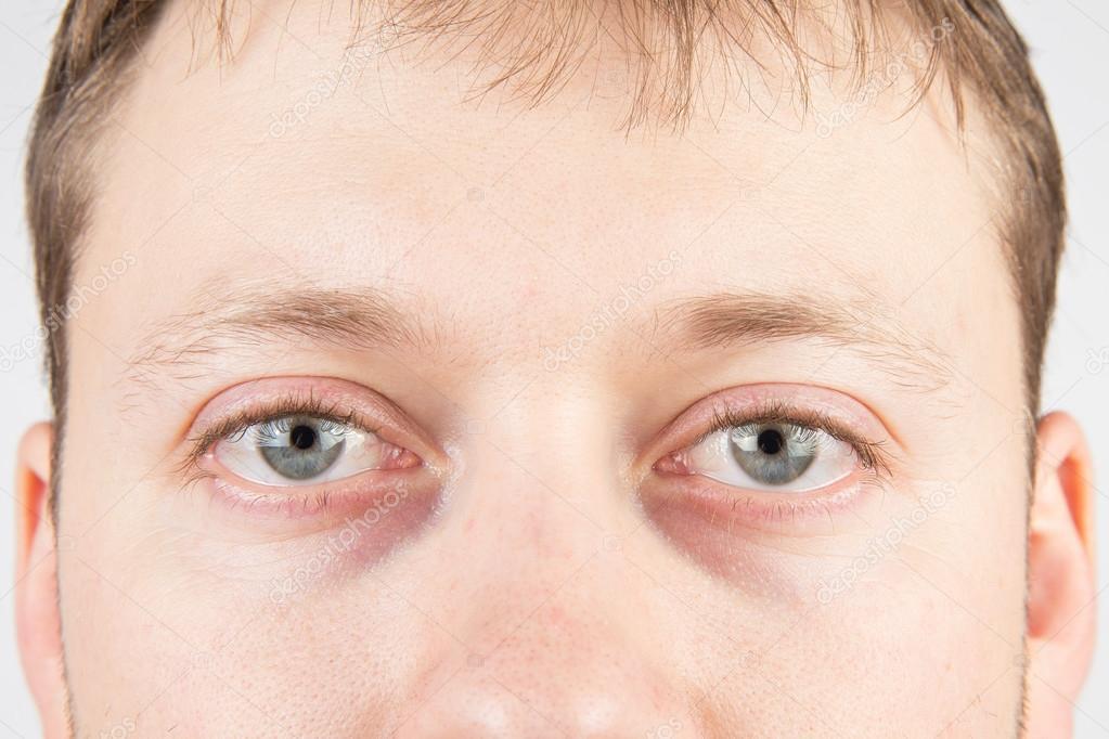 trött i ögonen