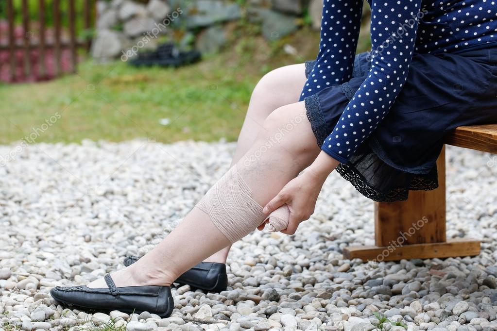 a varikózis oka a lábakon fotó gyógymódok K-vitaminnal a visszér ellen