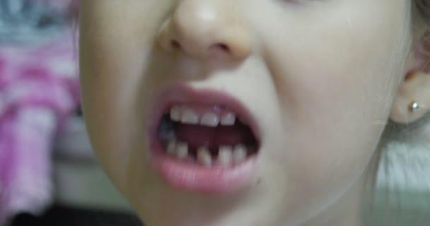 Perdere il dente dente traballante Kid bocca nelle vicinanze il viso della ragazza nelle vicinanze occhi ragazza ha aperto la sua bocca e agitando il suo dente di dito tocca i suoi denti