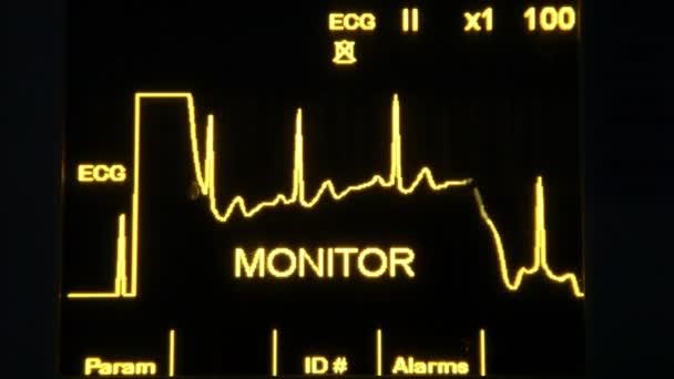 skutečné ekg monitor rychlejší hd 1080p