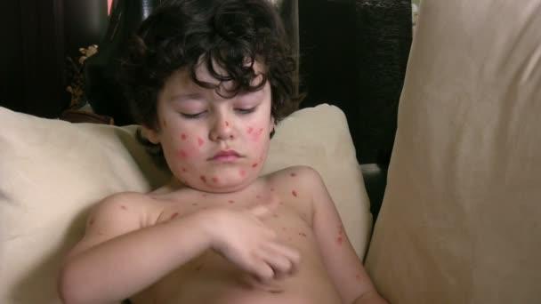 nemocný chlapec