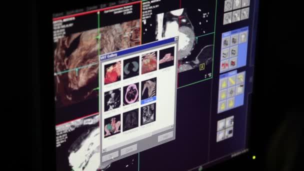 Mágneses rezonancia képalkotás az orvosi rendelő a kutatás. A tanulmány a szívet és a szív artériákban. MRI-vizsgálat, 3d-ben. CT Monitor szoba
