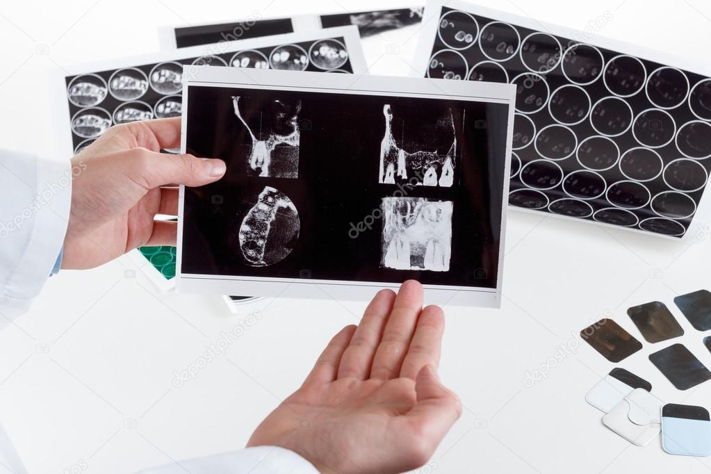 la radiografía panorámica dental en la mano — Foto de stock ...