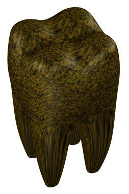 Rotten human tooth. 3D rendering.