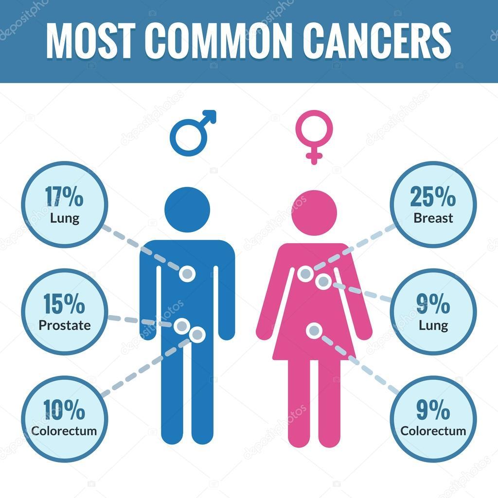 cancer féminin