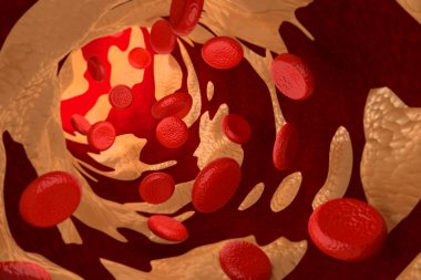 Arteriosclerosis by Cholesterol Plaque, 3D Rendering