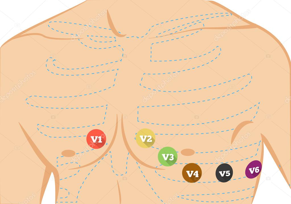 Ecg de pecho lleva ilustración de colocación. Lleva seis colores ...