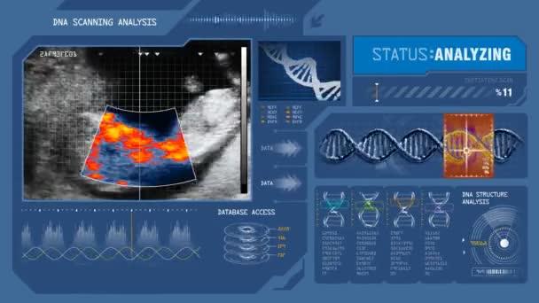 skenování lidského plodu v děloze
