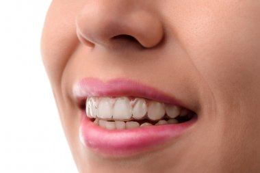 Dental medical care. Invisible braces