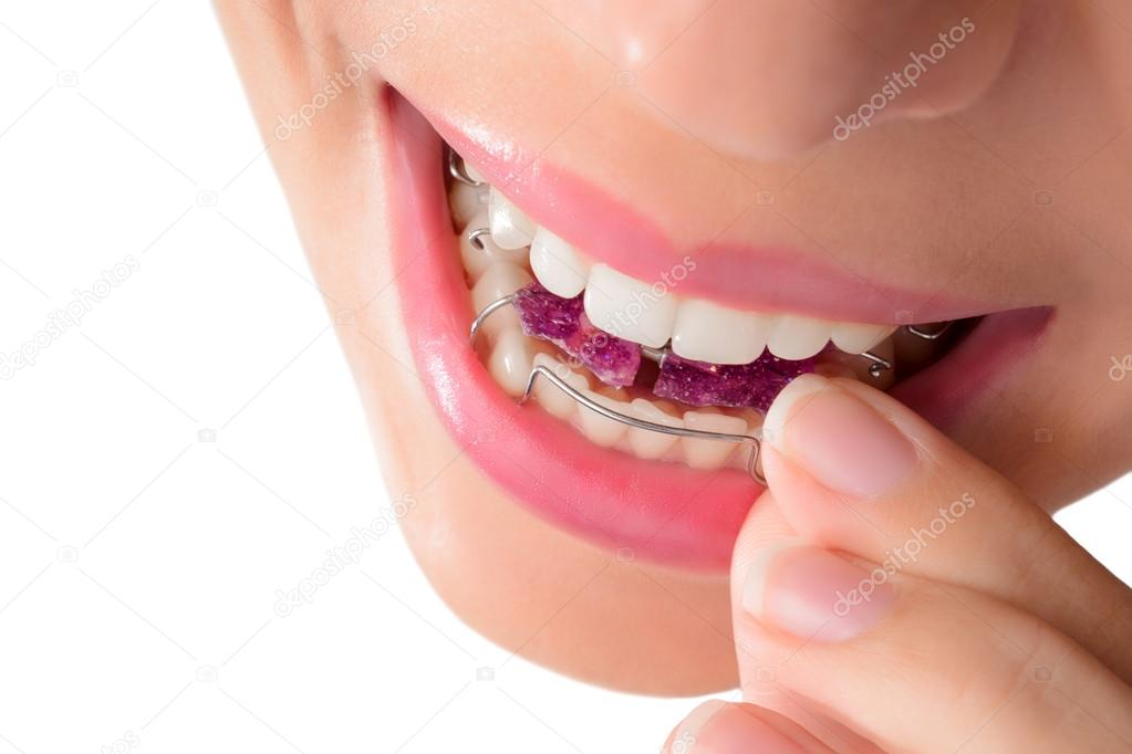 Woman wearing orthodontic removable brac