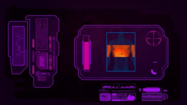 Digital Analysis - Digestion - pink