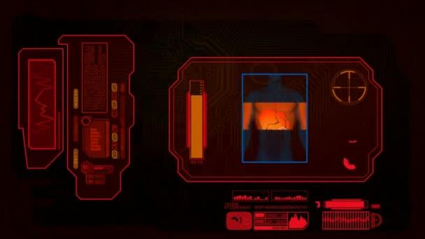Digital Analysis - Digestion - red