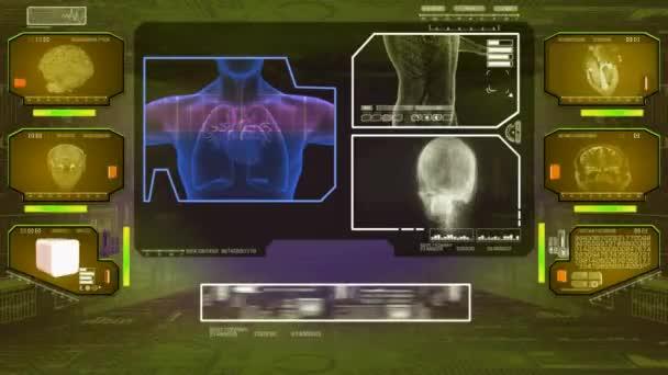 Herzanalyse - High-Tech-Scan - gelb 01