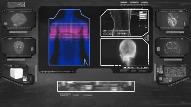 Trávení analýza - High Tech Scan - černá 01