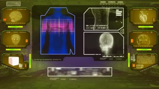 Trávení analýza - High Tech Scan - žlutá 01