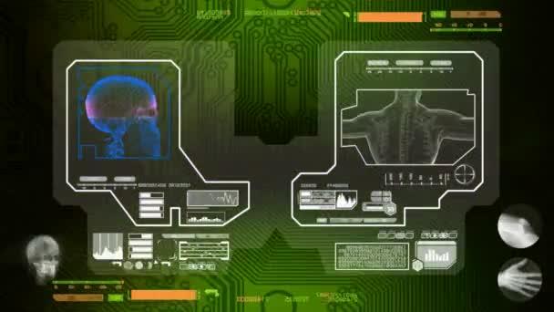Lebka - naskenované softwarem - zelená