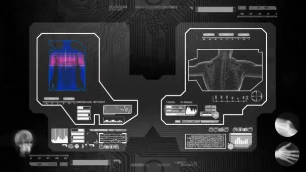 Trávení - naskenované softwarem - černá