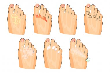 the various injuries of the feet. fungus, burning, warts, sweating. as well as soap, lotion, and spray