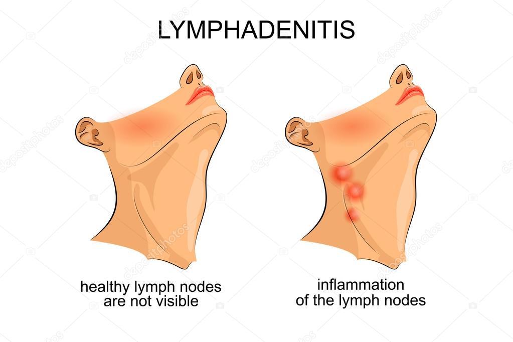Lymphadenitis. Entzündung der Lymphknoten — Stockvektor © Artemida ...