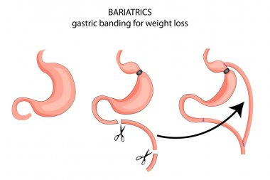 bariatrics. gastric banding with weight loss goals