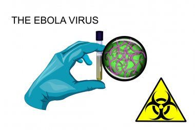 the Ebola virus. biohazard