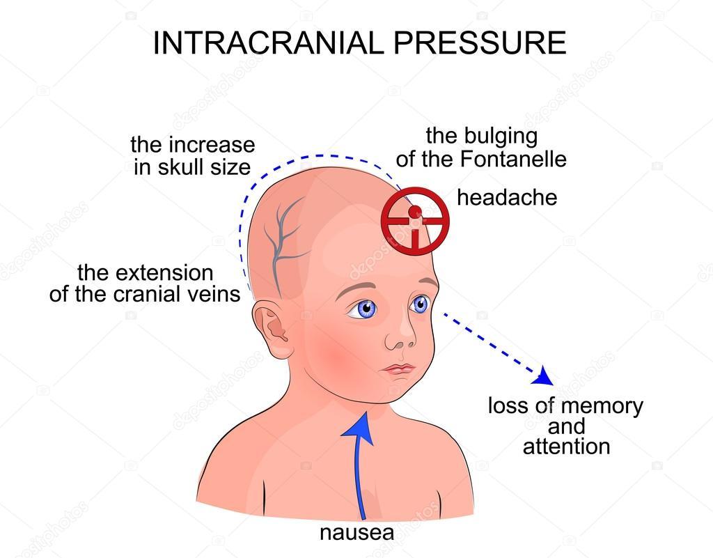 Os sintomas da pressão intracraniana em crianças - Vetores..