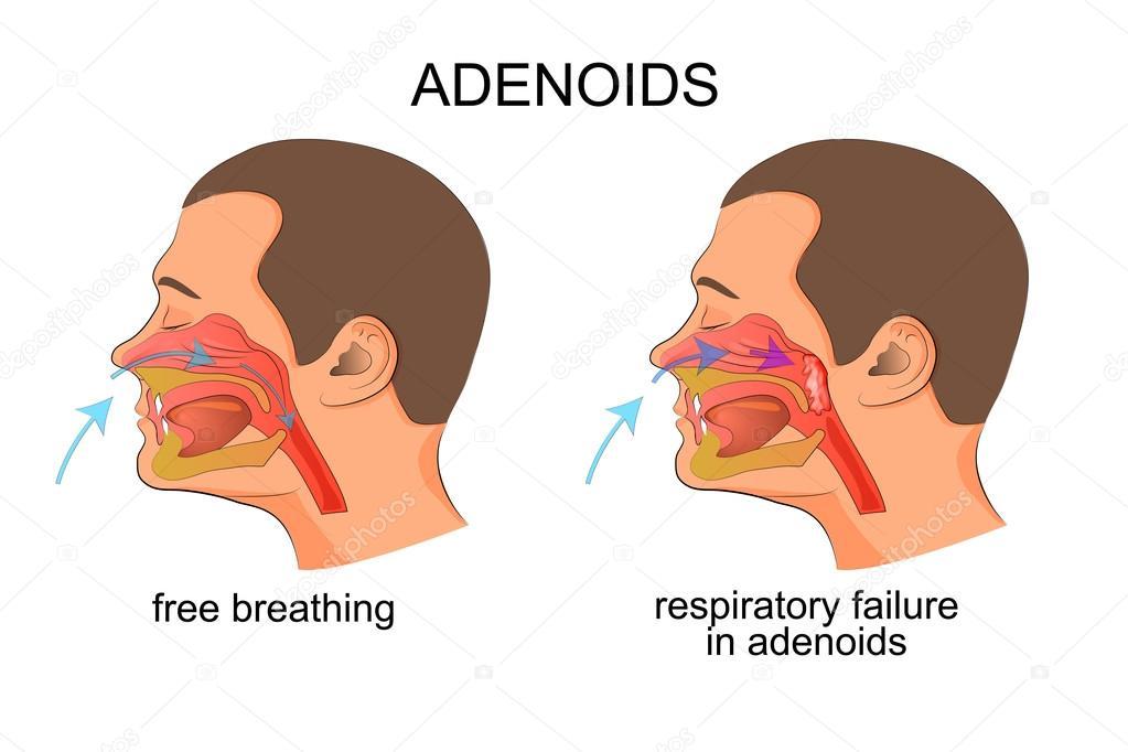 Adenoiditis, respiratorische Insuffizienz — Stockvektor © Artemida ...