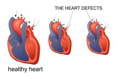 healthy heart and heart diseas