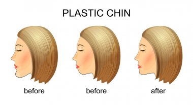 plastic surgery of the chin.before and after