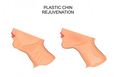 plastic surgery. surgical correction of the chin