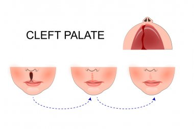 cleft palate in a child. plastic surgery. reconstruction of the
