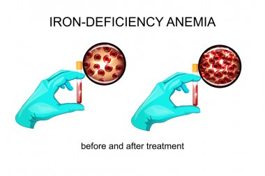 blood in vitro. red blood cells for iron deficiency anemia