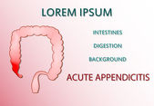 Akutní apendicitida