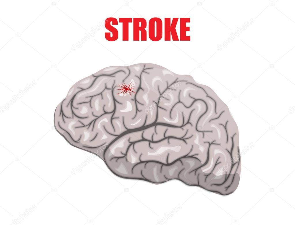 Ilustración de un accidente cerebrovascular hemorrágico — Vector de ...