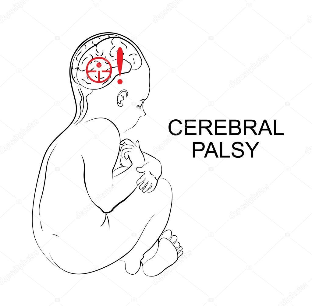 parálisis cerebral. Neurología — Archivo Imágenes Vectoriales ...