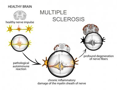multiple sclerosis. Neurology