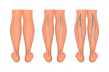 varicose veins of the lower extremities
