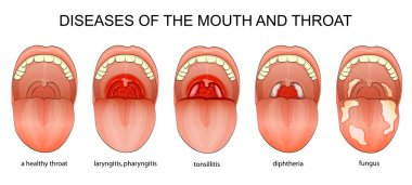 DISEASES OF THE THROAT