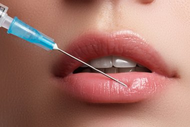 Closeup of beautiful woman gets injection in her lips. Full lips. Beautiful face and the syringe (plastic surgery and cosmetic injection concept). Botox injections.