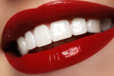 """Картина, постер, плакат, фотообои """"идеальная улыбка после отбеливания. стоматологическая помощь и отбеливание зубов. стоматология и косметика. женщина улыбается с великолепными зубами. веселая женская улыбка с чистой кожей """", артикул 97215904"""