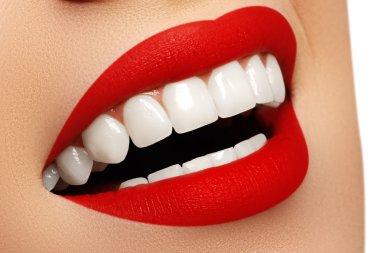 """Картина, постер, плакат, фотообои """"Идеальной улыбки после отбеливания. Стоматологическая помощь и отбеливание зубов. Стоматология и красоты уход. Женщина, улыбаясь, с большой зубов. Веселые девушки улыбка с свежей чистой кожи"""", артикул 97216812"""