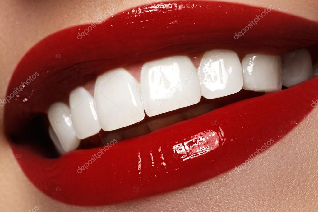 Sorriso Perfeito Apos O Clareamento Cuidados Dentarios E