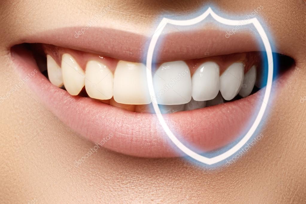 отбеливание зубов подольск красные ряды