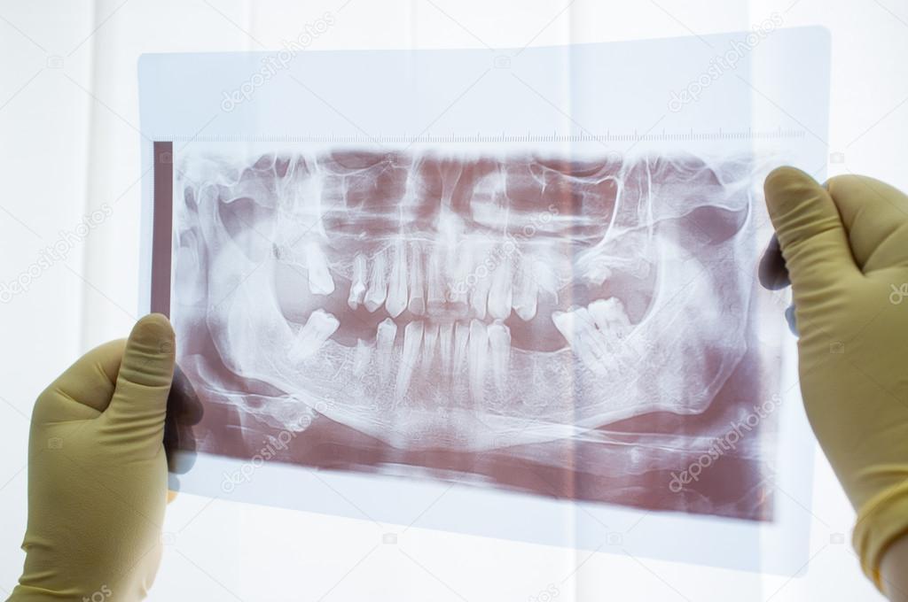 Fantastisch Panorama X Ray Anatomie Ideen - Menschliche Anatomie ...