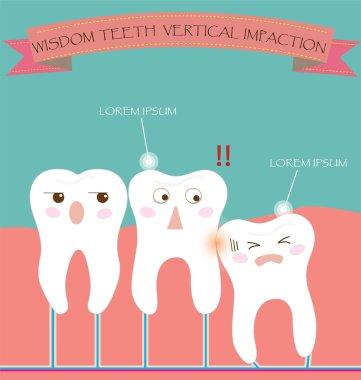 Wisdom Teeth Vertical Impaction