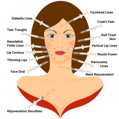 Hyaluronic Asid Infographic. Face Plastic Surgery