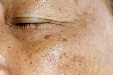 Melasma or Sun burn Pigmentations