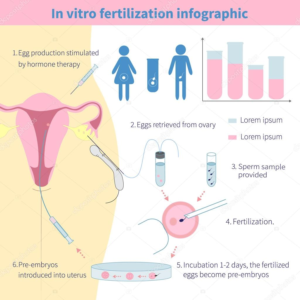 an argument in favor of women request to in vitro fertilisation ivf Fertilisation, webriefly present afurther argument used in this respect is that we proportion of women suffer bleeding at the time of.