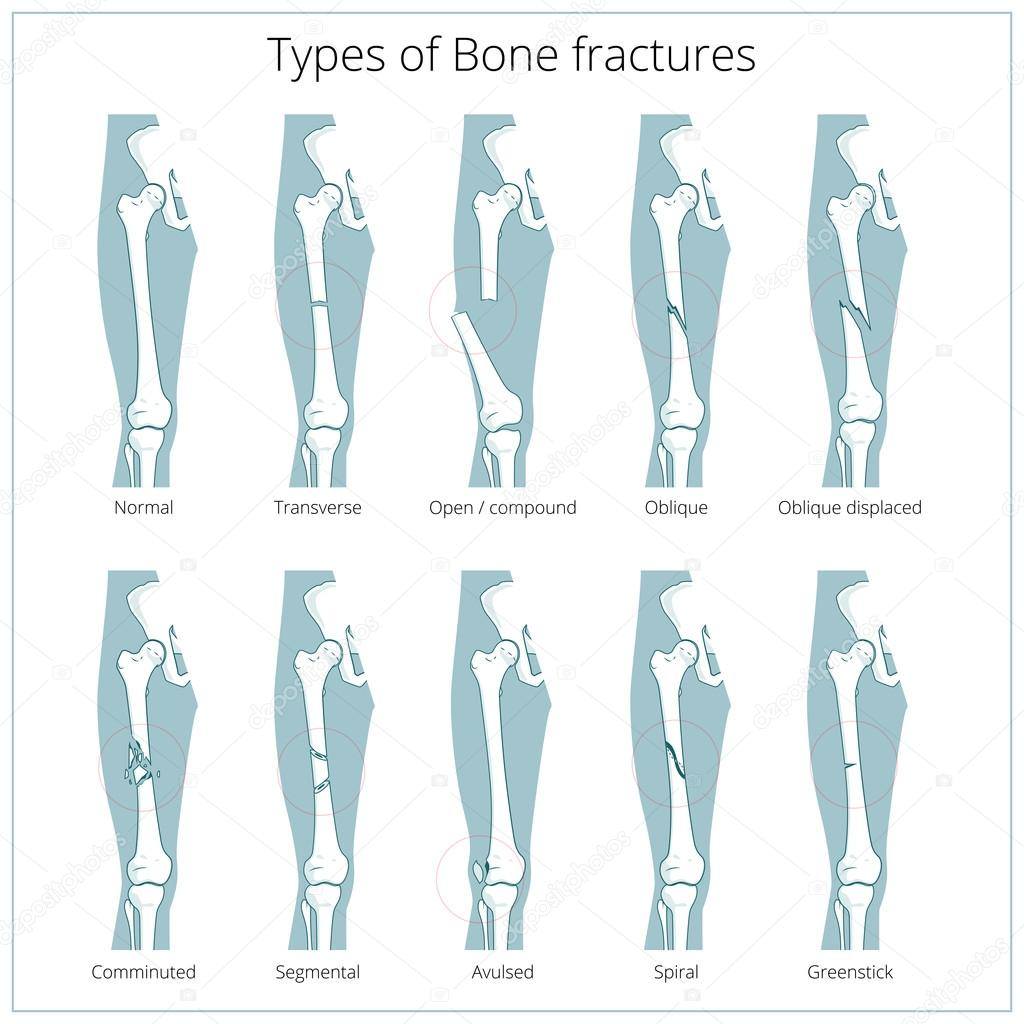 Types of bone fractures medical educational vector — Stock Vector ...