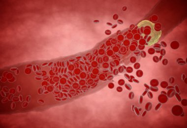 Clogged Artery  cholesterol plaque, concept 3d animation